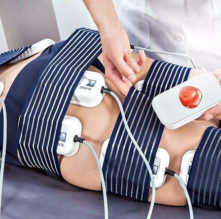 Elektrostimulatie EMS